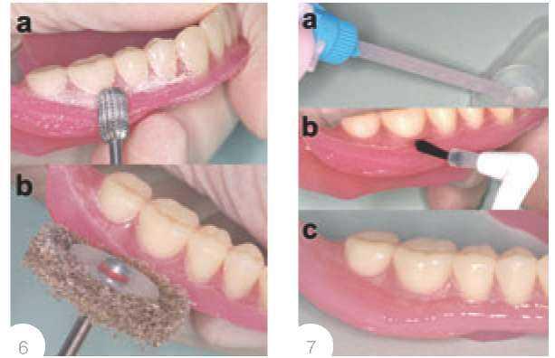 Перебазировка зубного протеза цена