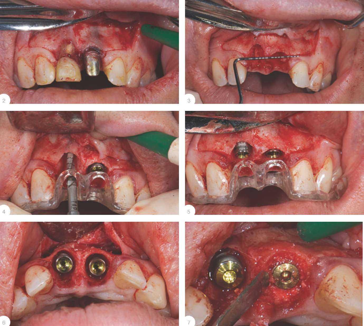 Как вырвать сломанный зуб в домашних условиях144