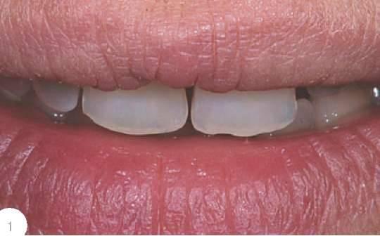 виниры для зубов готовые место протезов