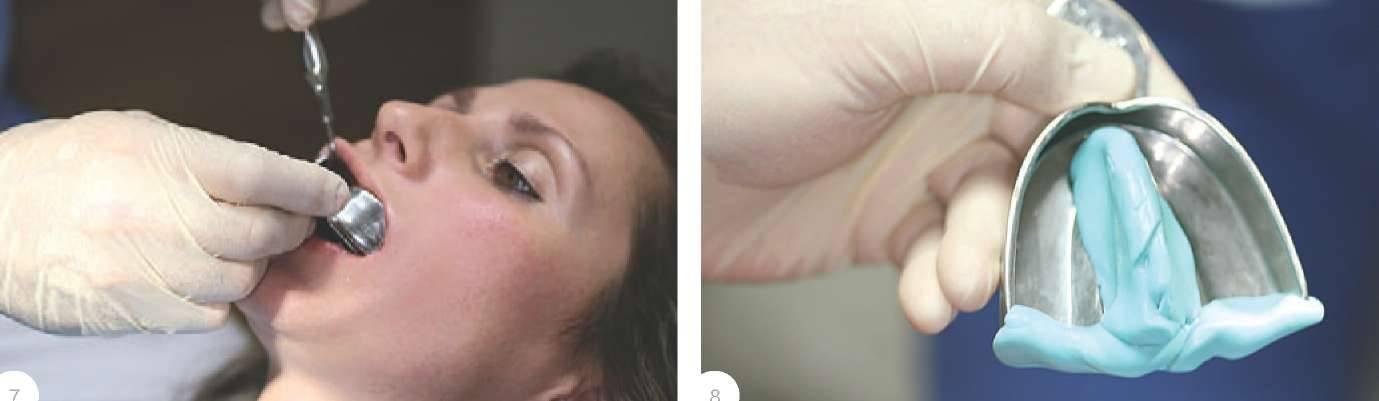 Симптом Лермитта фото