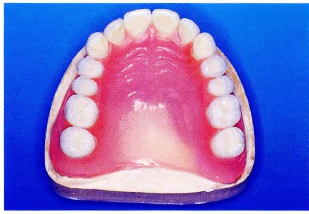 среднеазиатская черепаха у кого съемные зубные протезы форум новой