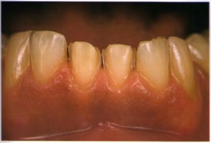 виниры на нижние зубы цена