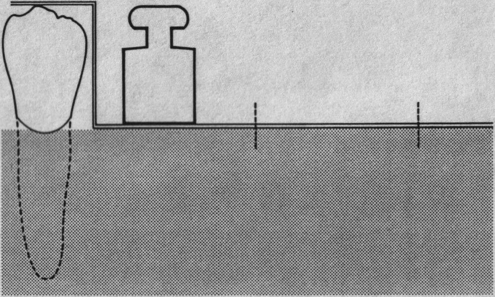 Адгезивные Мостовидные Протезы Реферат