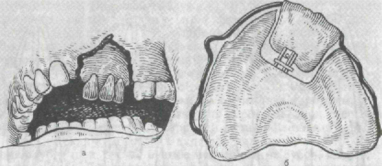 аллергия на вставные зубы