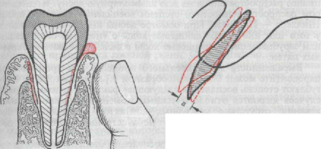 связка периодонтальная