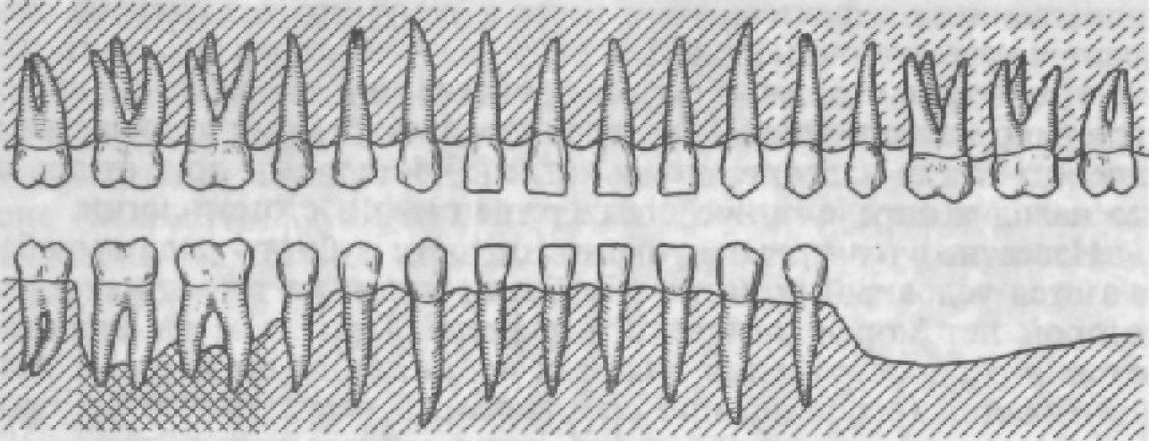 целости зубного ряда.