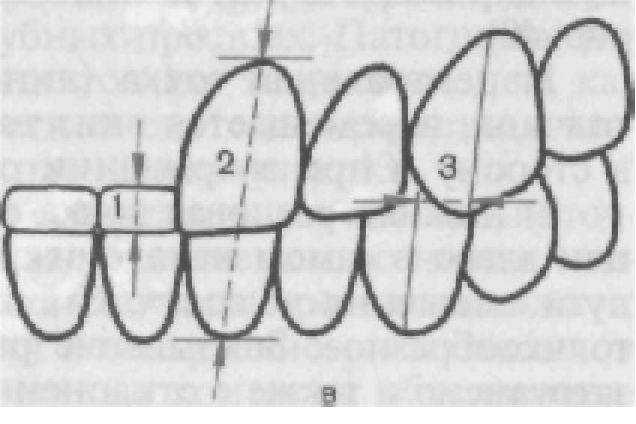 передних зубов (схема).