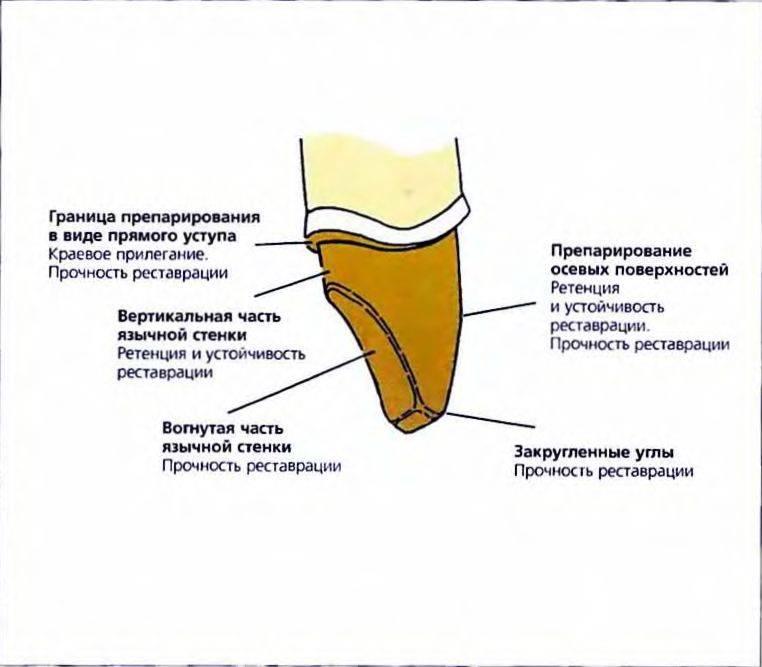 Препарирование зубов под фарфоровые коронки
