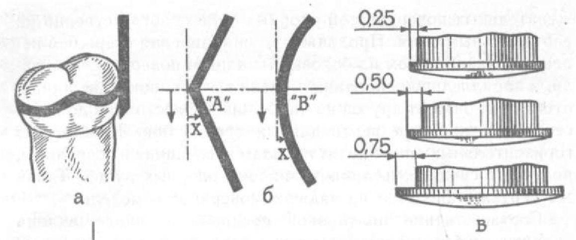 линии зуба (а), расположение (б) н измерение ретениионной зоны с помощью ка