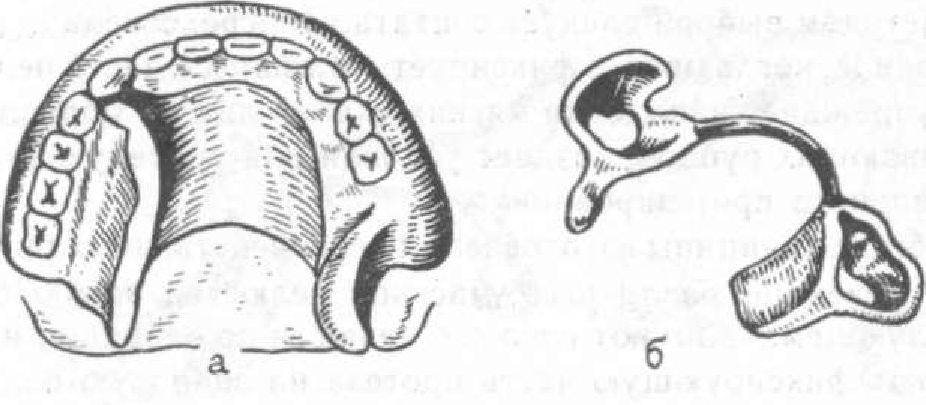 Скоба Ортодонтическая Назубная
