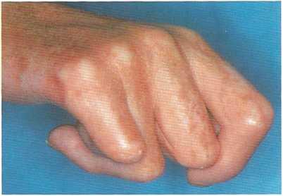 ограничена подвижность руки в плечевом суставе
