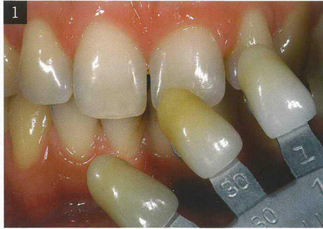 Изменение цвета зубов: классификация, причины изменения, способы восстановления белизны зубов