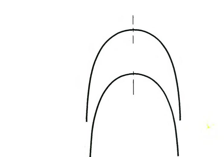 верхней зубной дуги.