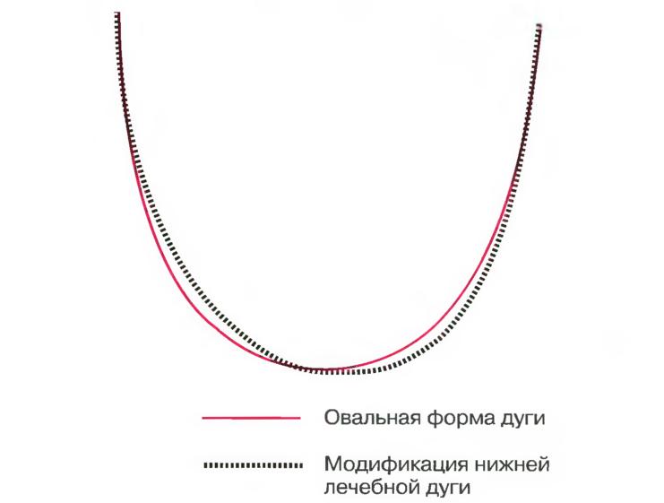 асимметрии зубной дуги,