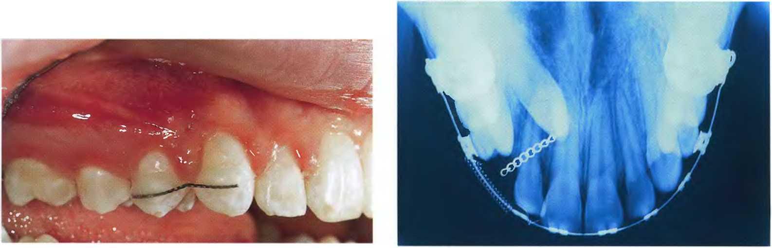 позиционеры в стоматологии инструкция