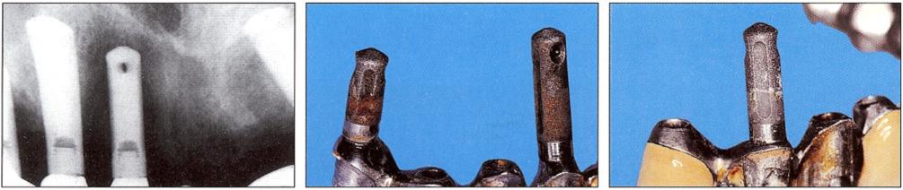 Цилиндрический имплантат