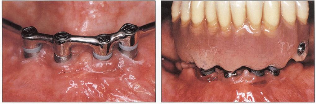 Перфорация челюсти