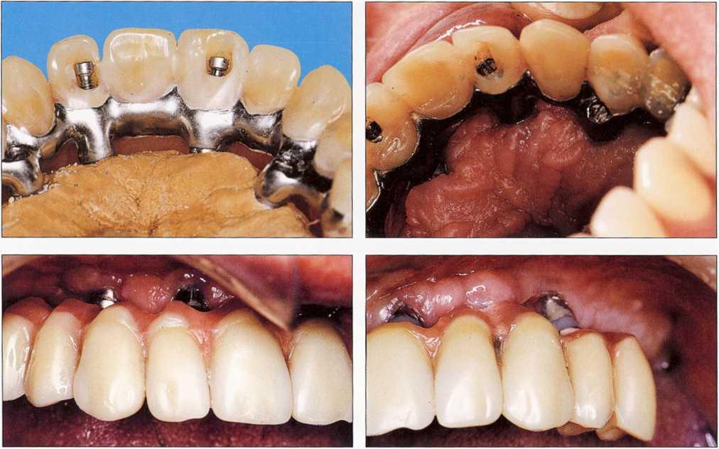 фото зубных протезов цена