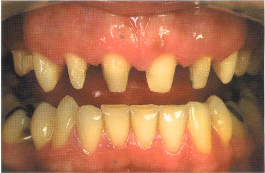 Керамика на верхние зубы