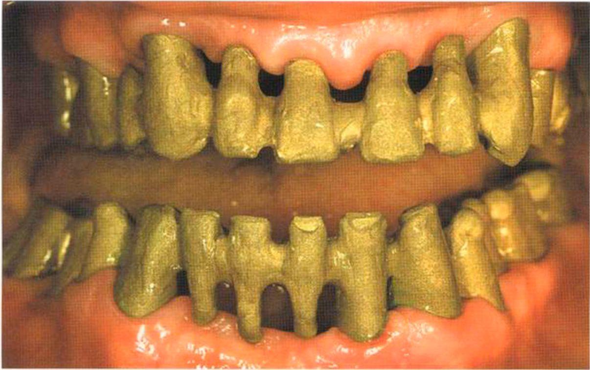 Металлокерамическими зубы отзывы
