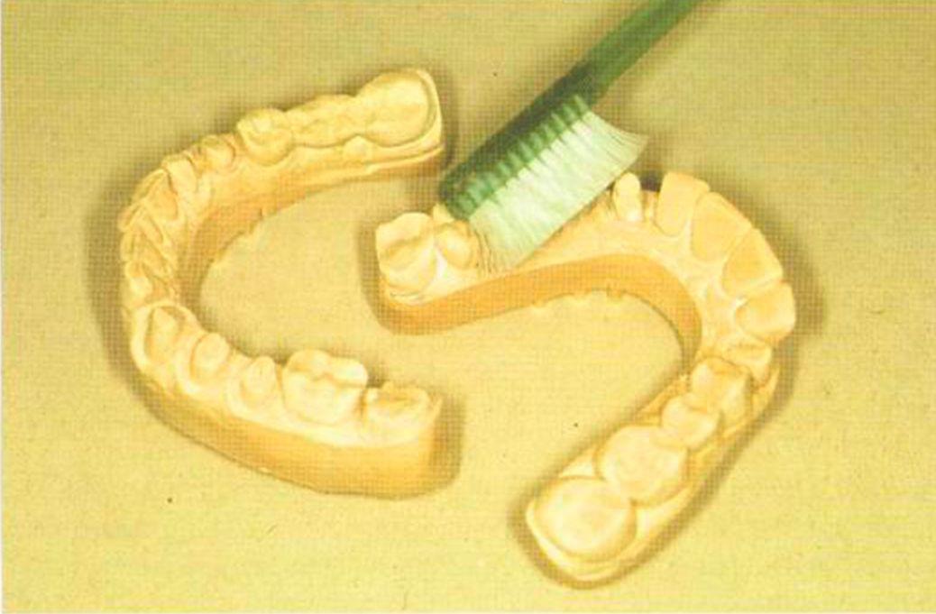 системы работы с зубными моделями