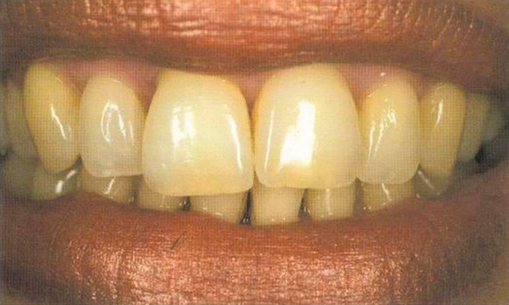 Системы работы с зубными моделями анна левицкая фото