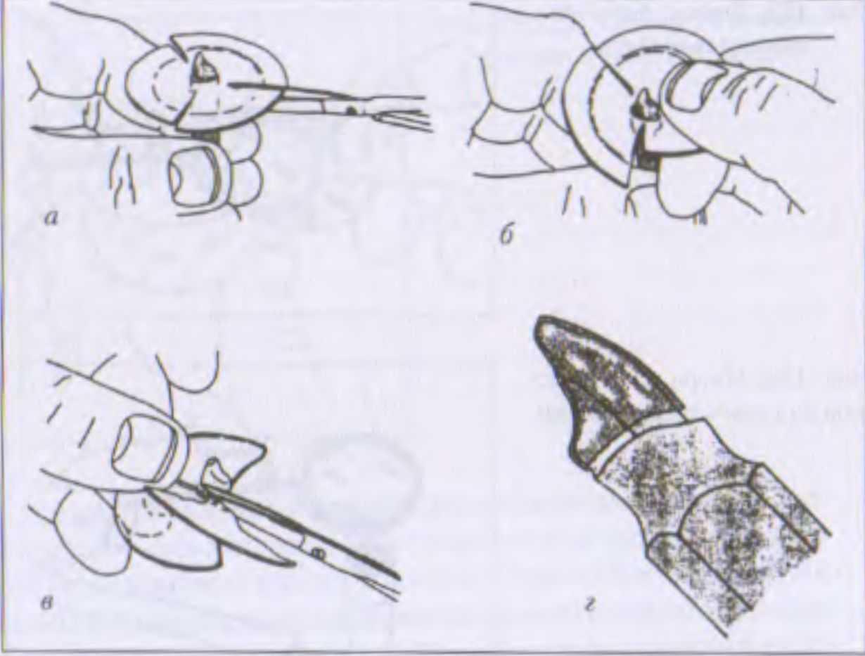 Изготовление зуба из воска