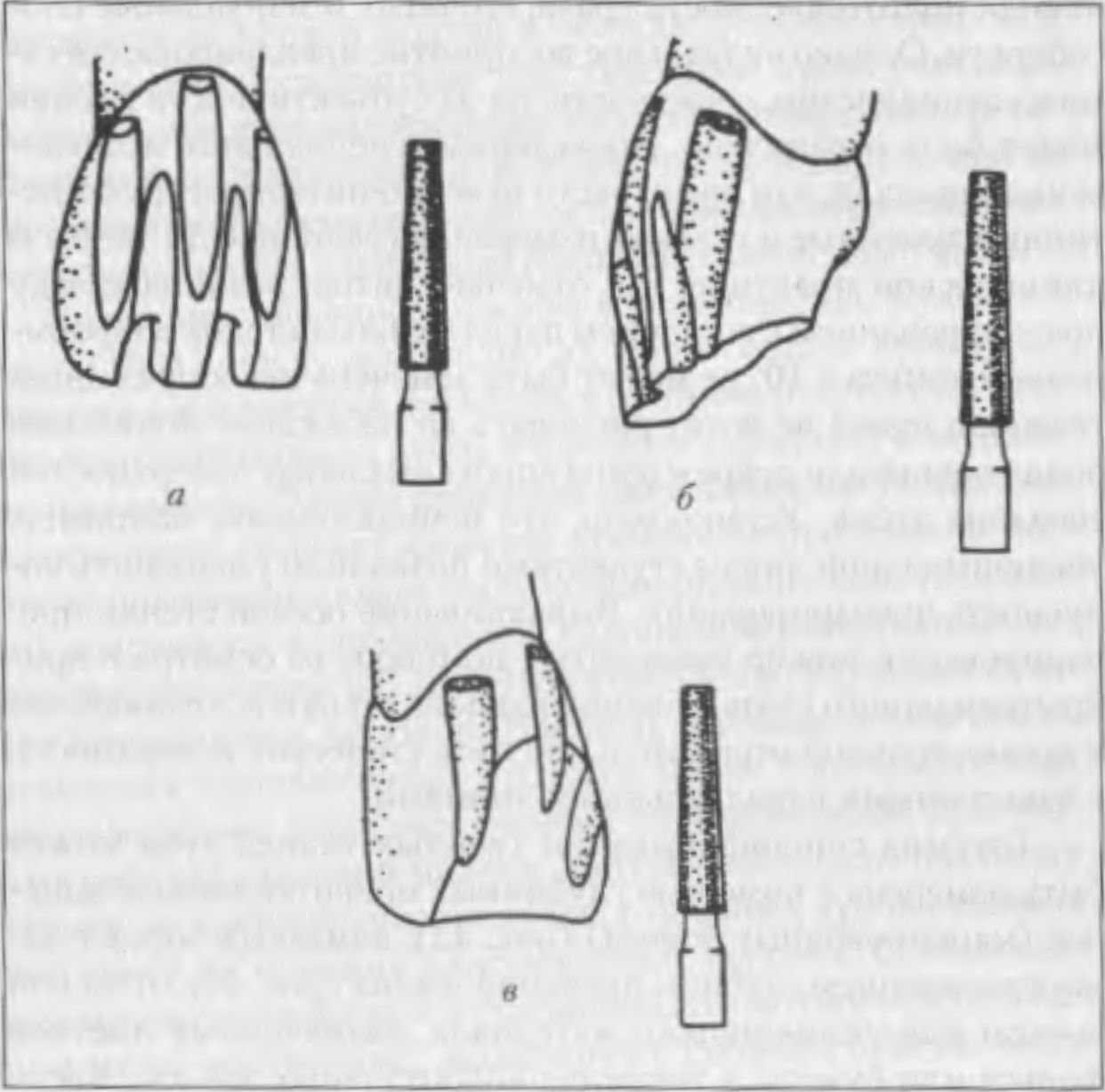 Оценка качества препарирования зубов под исскуственную коронку