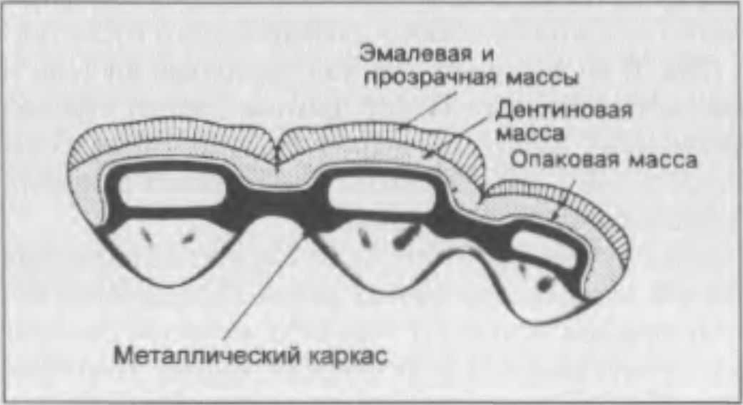 Тело Мостовидного Протеза