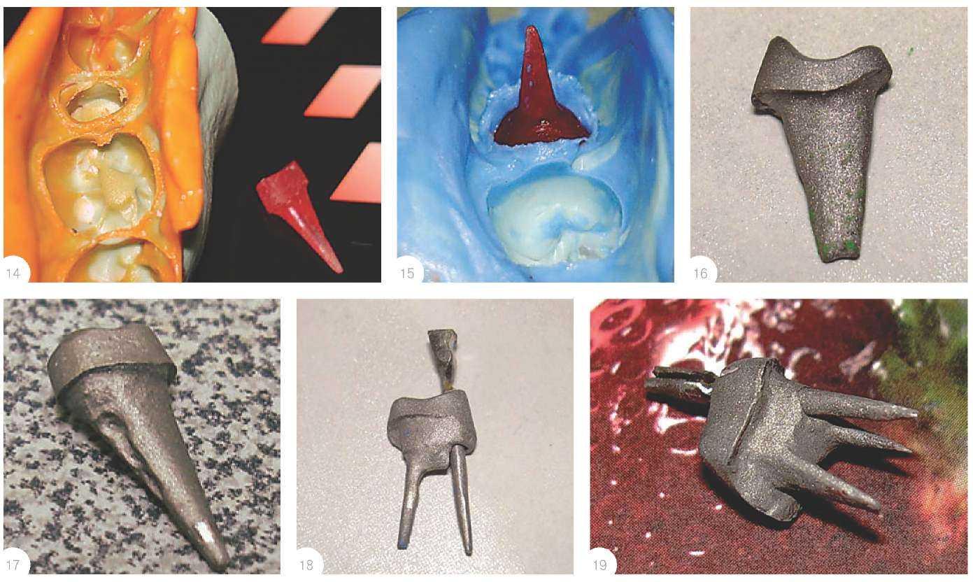 Штифты в зуб при металлокерамике