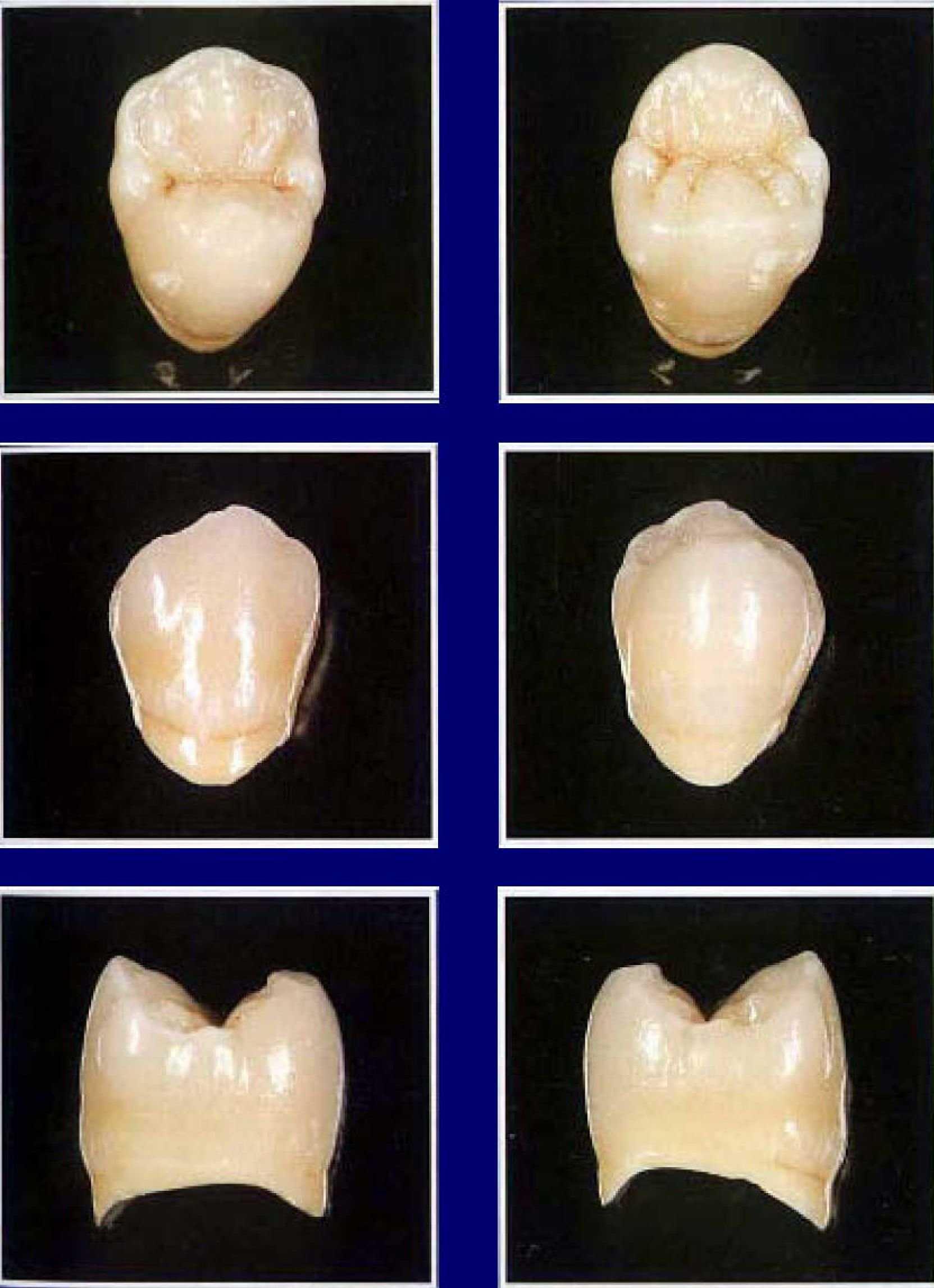 Анатомия форм зубов