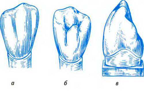 Рисунок 10. Строение коронки