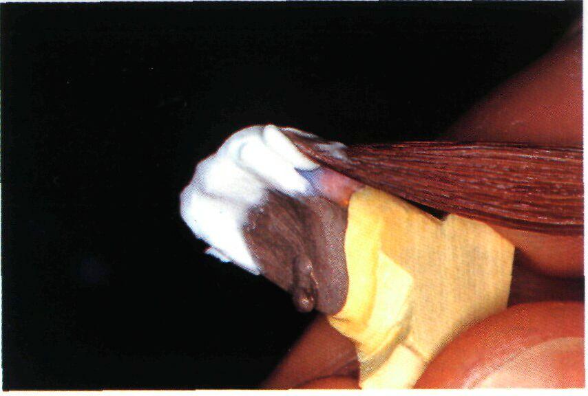 Рис 14d вид коронки со стороны