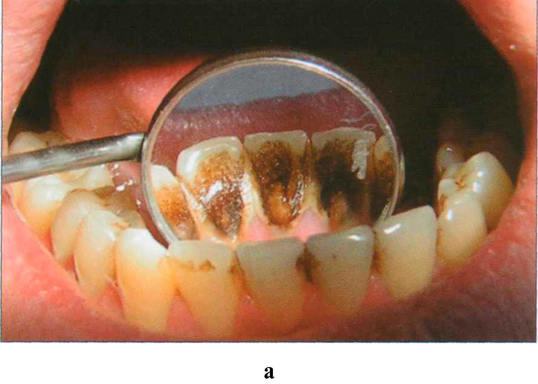 иногда возникает как снять камни на зубах в домашних условиях значения