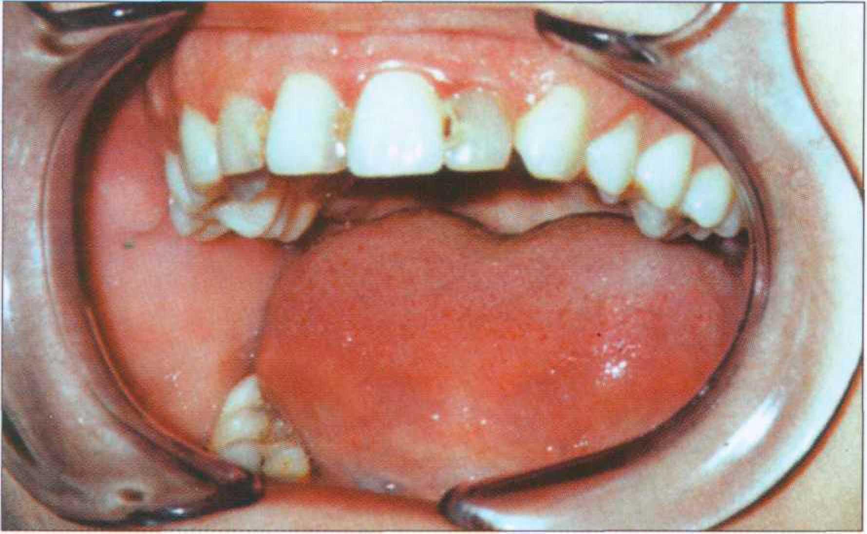 Гангрена зубов это