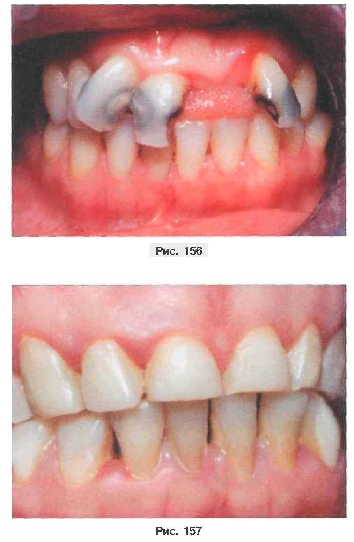 Нижние зубы сверху верхних