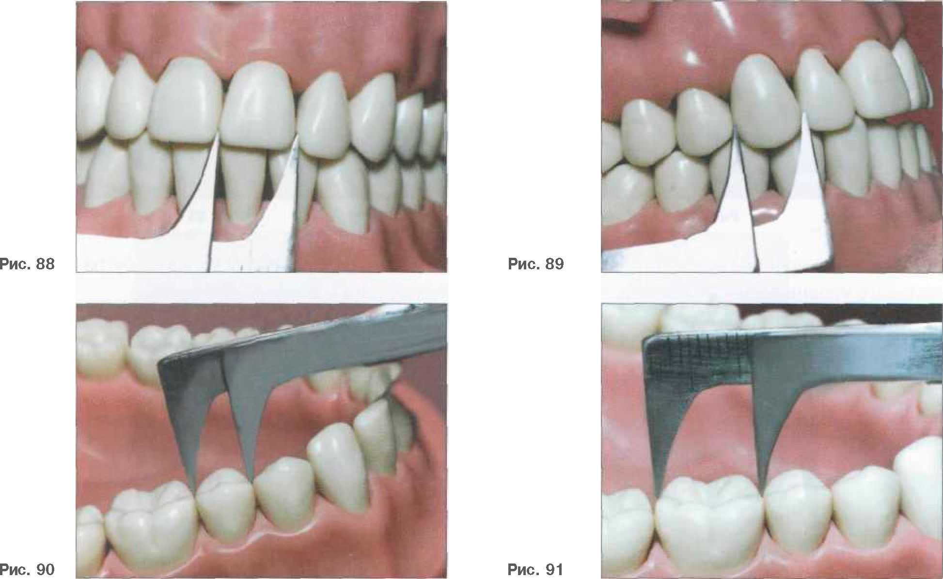 Размер переднего зуба