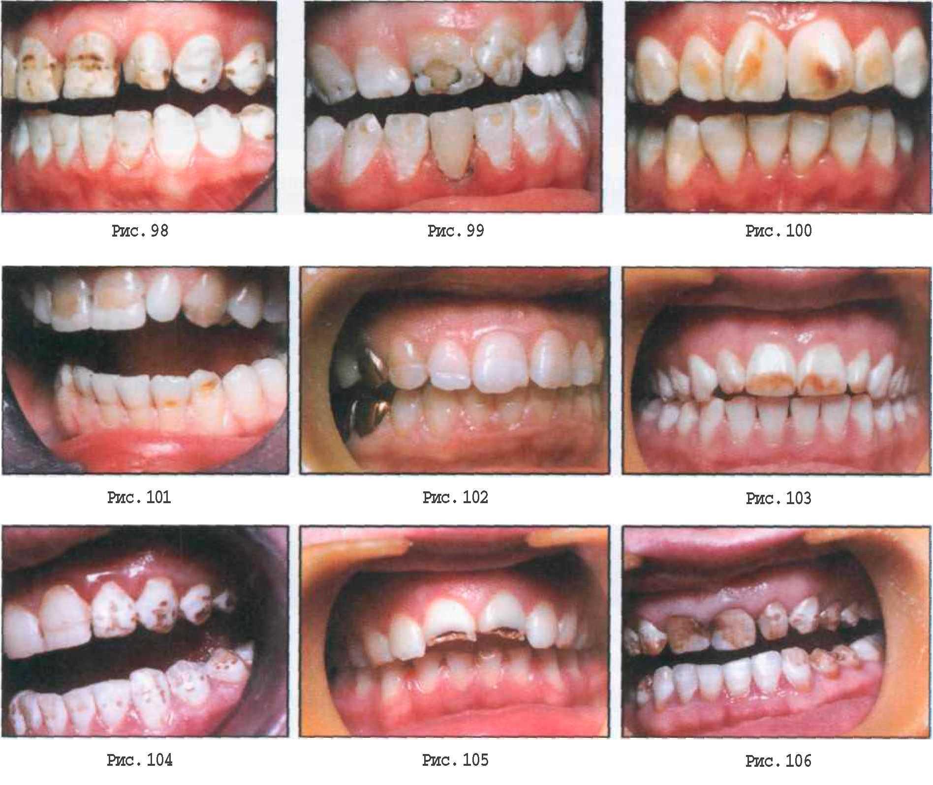 Зубы Гетчинсона