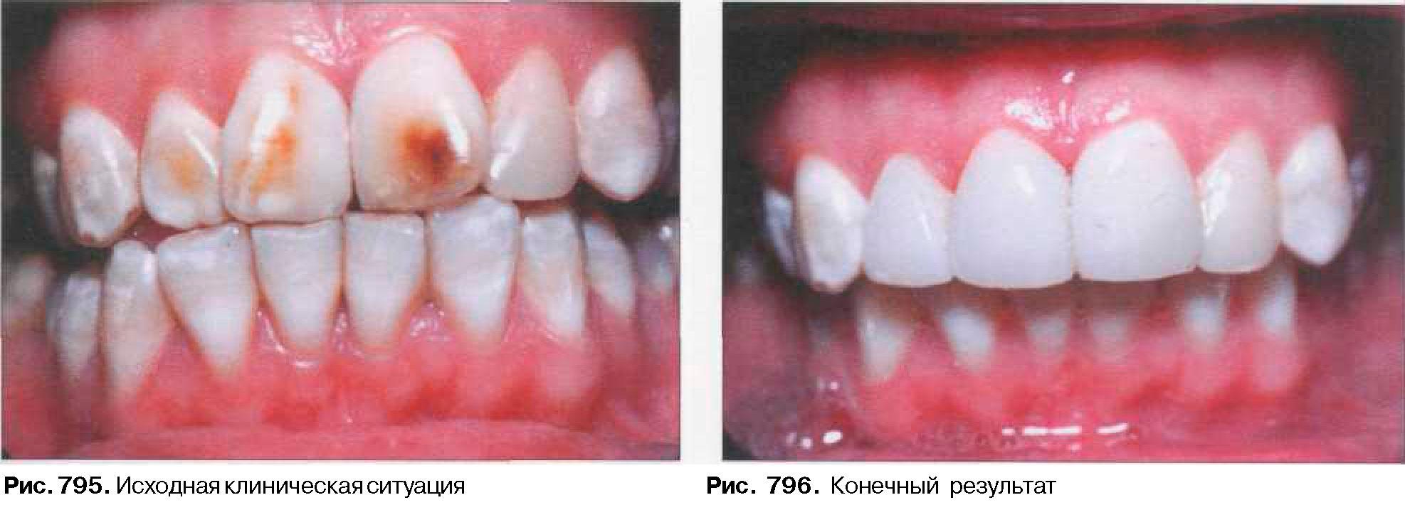 Индукция Корня Зуба фото