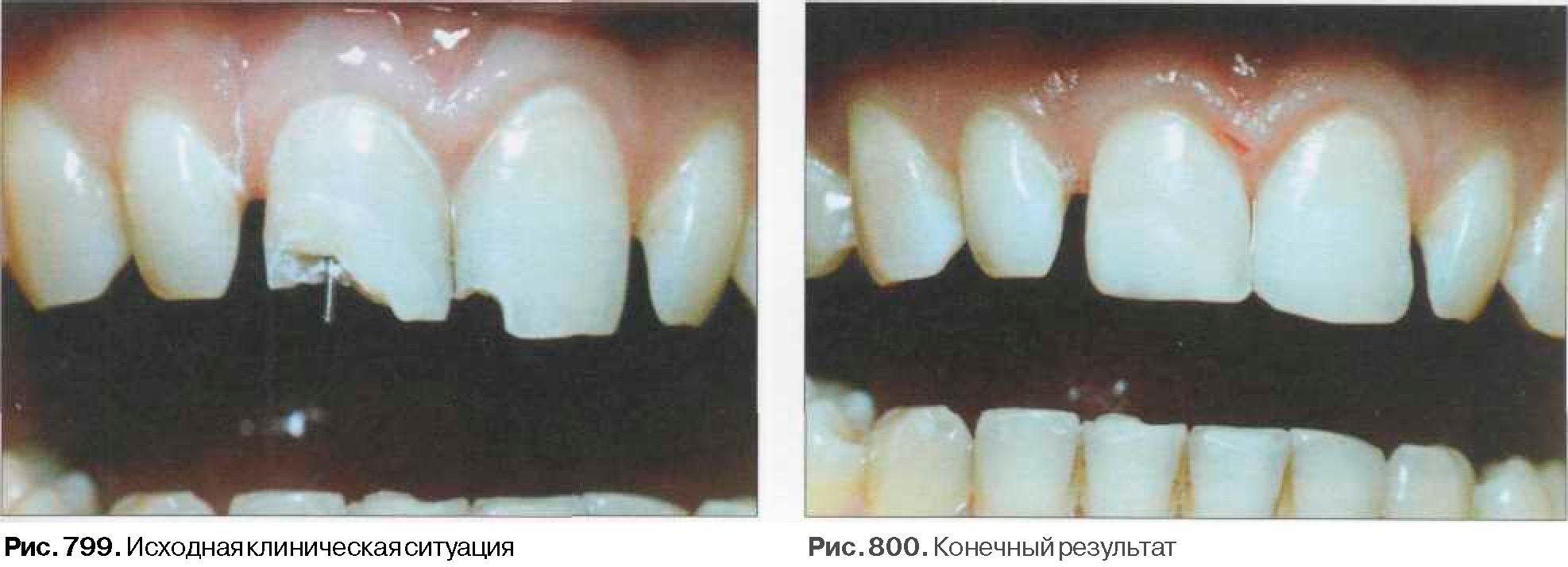 Восстановление коронки штифтовым зубом