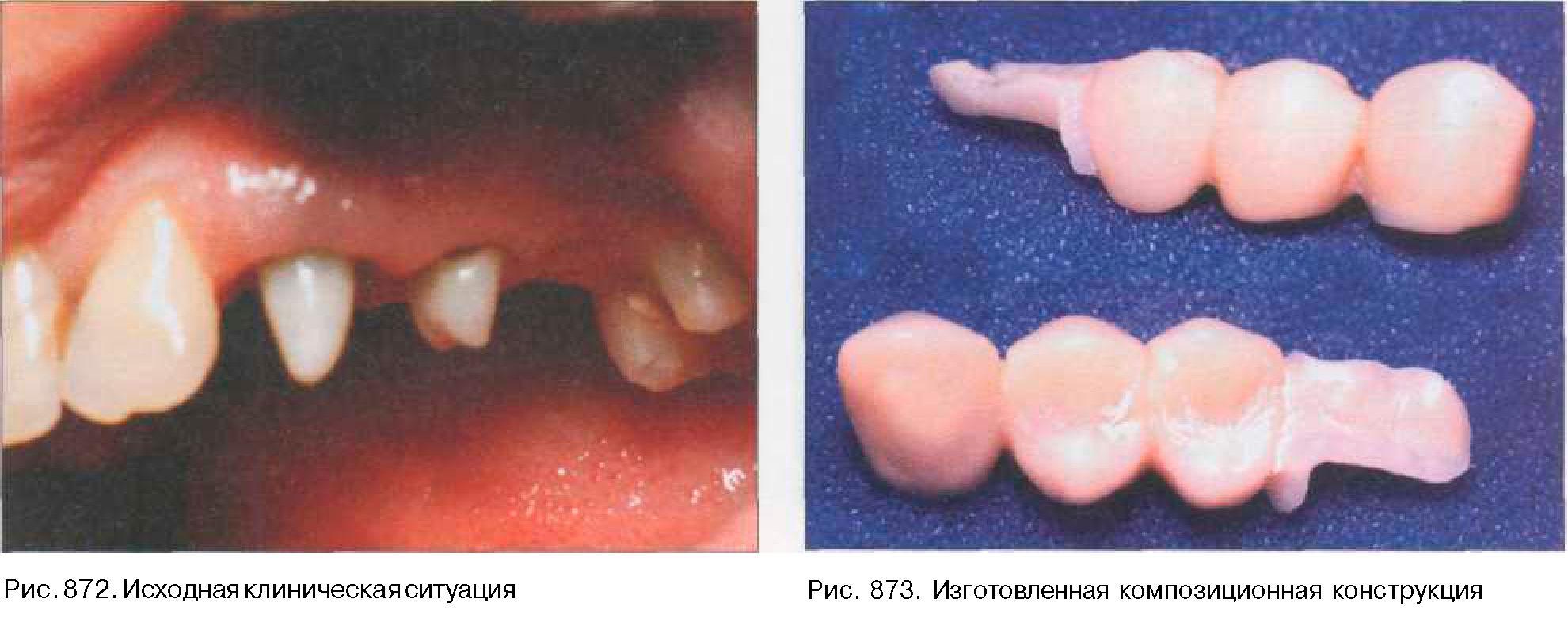 Реставрация фронтальных и боковых групп зубов