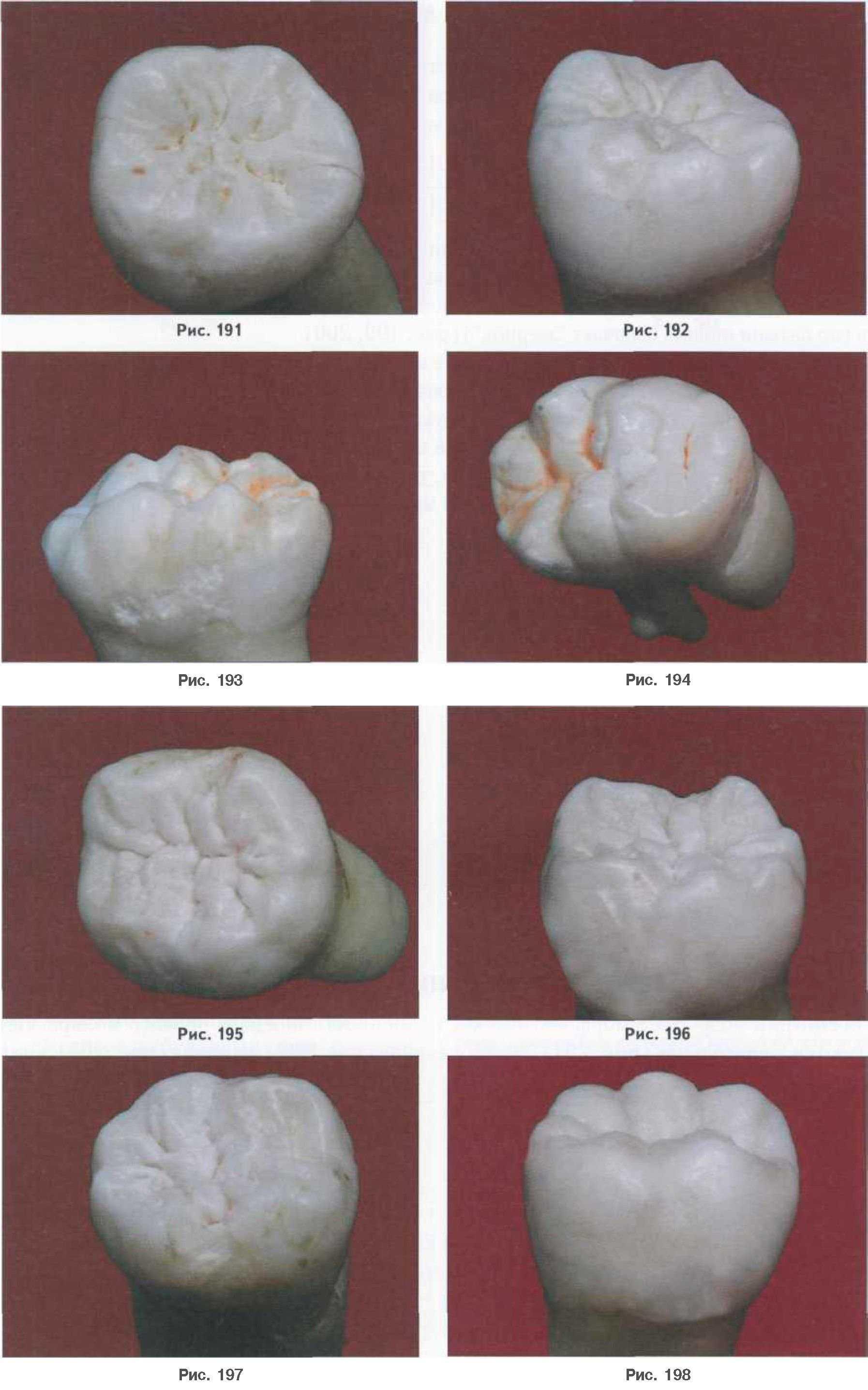 Как сделать зубы с пластилина