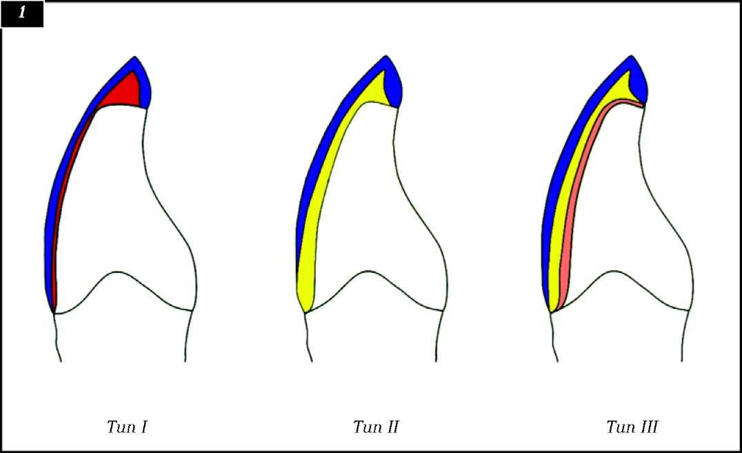 Схема трех типов