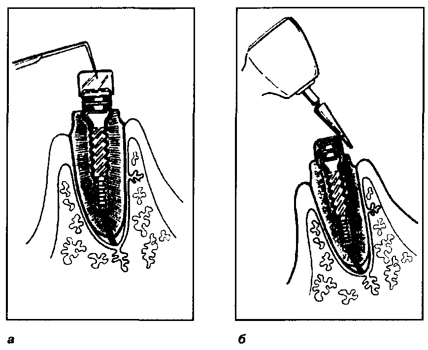 Миотактический