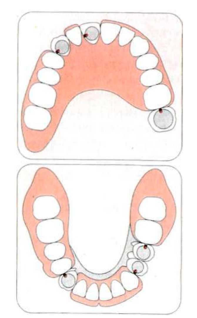 Схема покрывных протезов